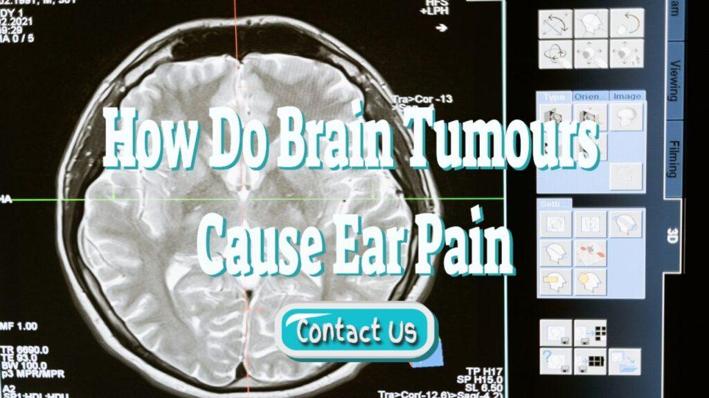 How Do Brain Tumours Cause Ear Pain – Including Aneurysms